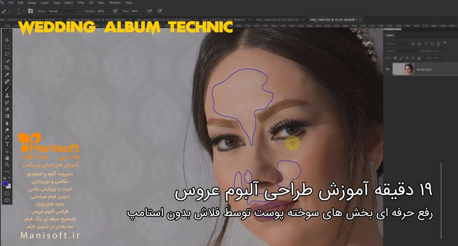 تکنیک های رفع سوختگی پوست در فتوشاپ